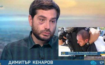 Битият журналист: Казах на полицаите, че се задушавам, но те ме натискаха и ритаха в лицето с кубинки